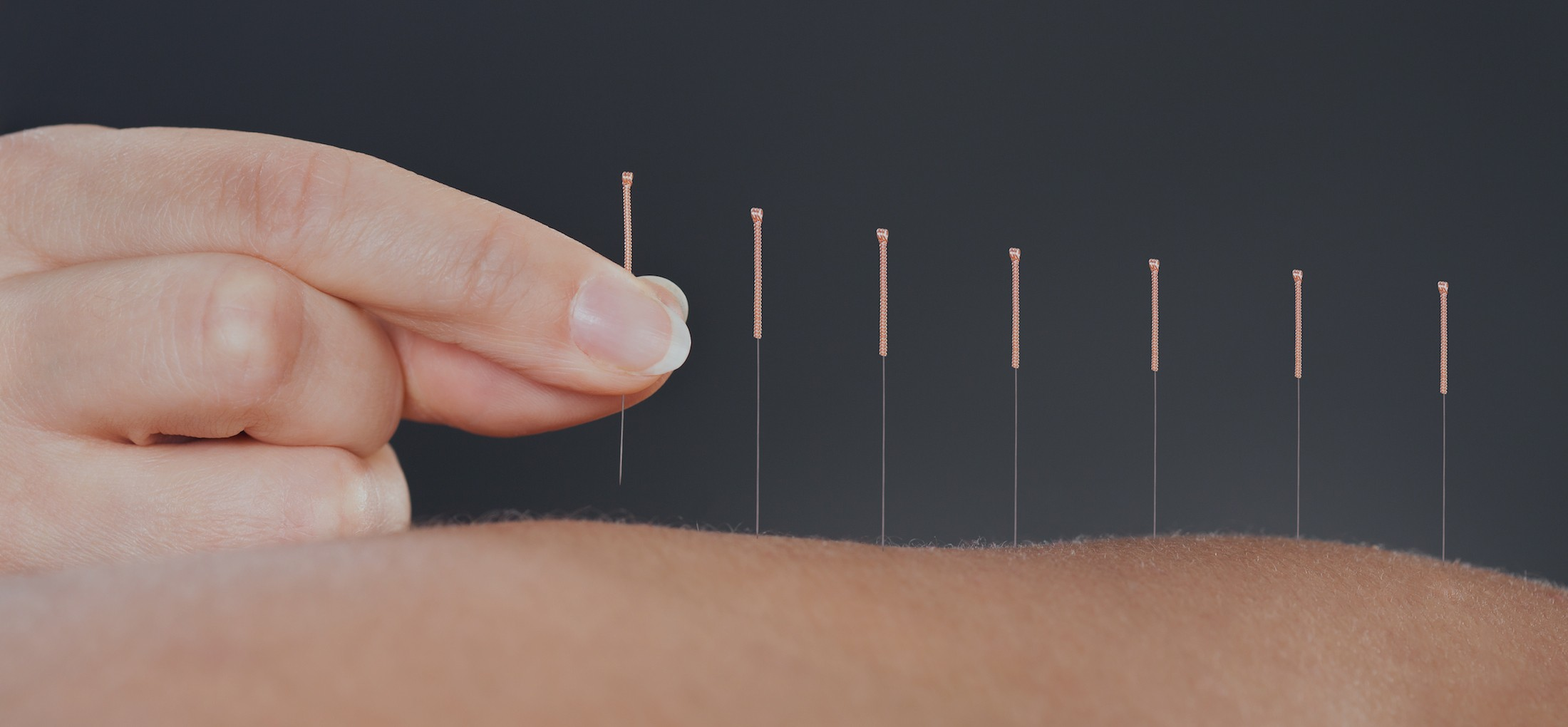 Best Acupuncture in Melbourne | Balance Complementary Medicine